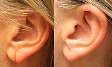 Torn Earlobe Repair Flatirons Dermatology